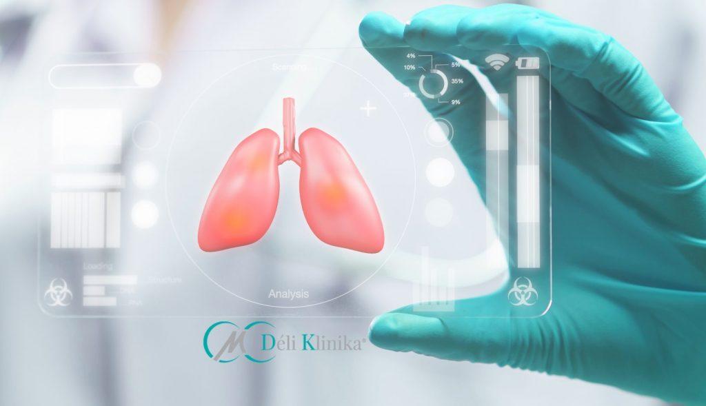 Mit érdemes tudni a COVID-19 és COPD kapcsolatáról?