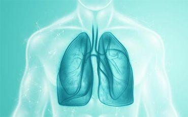 Mit érdemes tudni az atípusos tüdőgyulladásról?