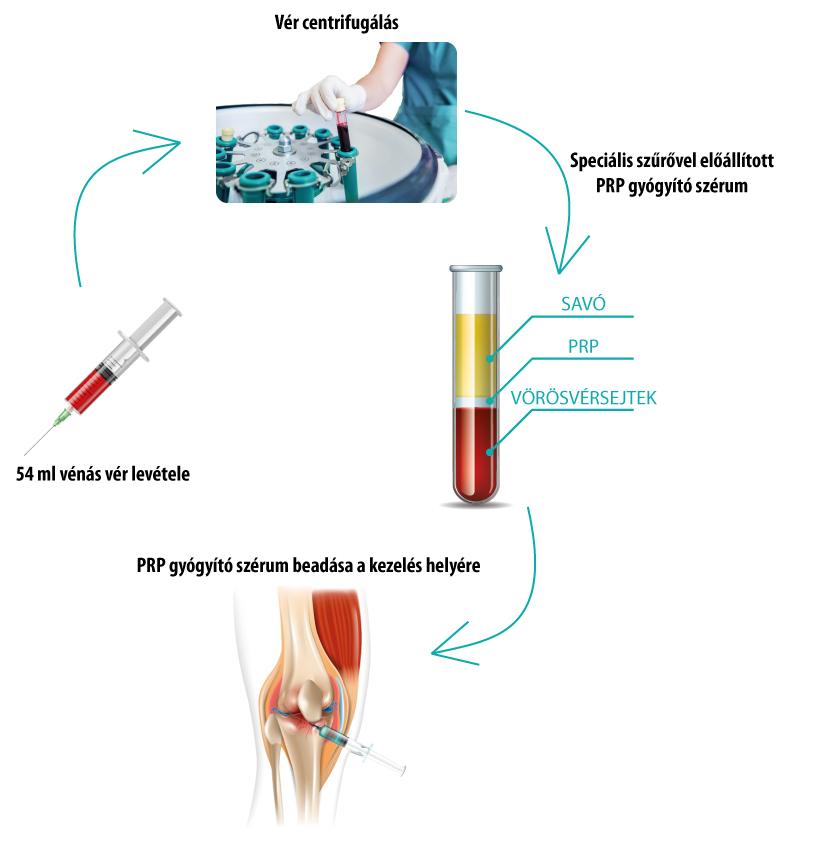 ízületi gyógyító ízületi kezelés)